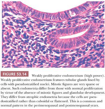 abnornal uterine bleeding medical history guide